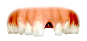 歯が1本なく、その歯を入れる必要が出てくるのは、事故や歯に関する生まれつきの素因などが考えられます。