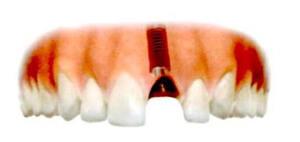 インプラントが顎骨に埋入されます。健康な歯が影響や損傷を受けることはありません。