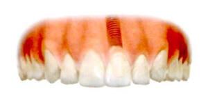 これで新しい歯の取り付けは完了です。