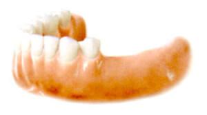 奥歯を失ってしまった方もいます。