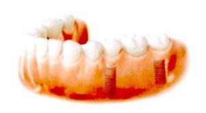 これで、口の奥の部分で行われる強い咀嚼力に耐えるインプラント・ブリッジが設置されました。