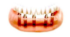 オーバーデンチャーの場合、複数のインプラントが埋入され、入れ歯(義歯)を設置する頑丈な土台として使用されます。