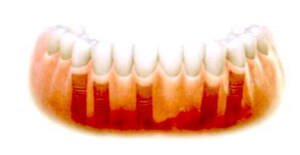 アバットメントがインプラントに取り付けられ、ブリッジが固定されます。歯の治療は、患者さまの要件や希望に基づいて行われます。